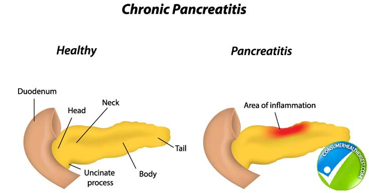 Signs of Chronic Pancreatitis