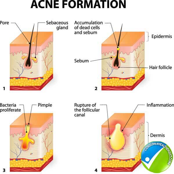 Acne Signs and Symptoms
