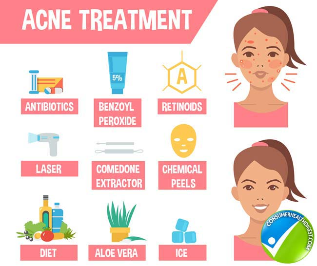 Acne Treatment detail