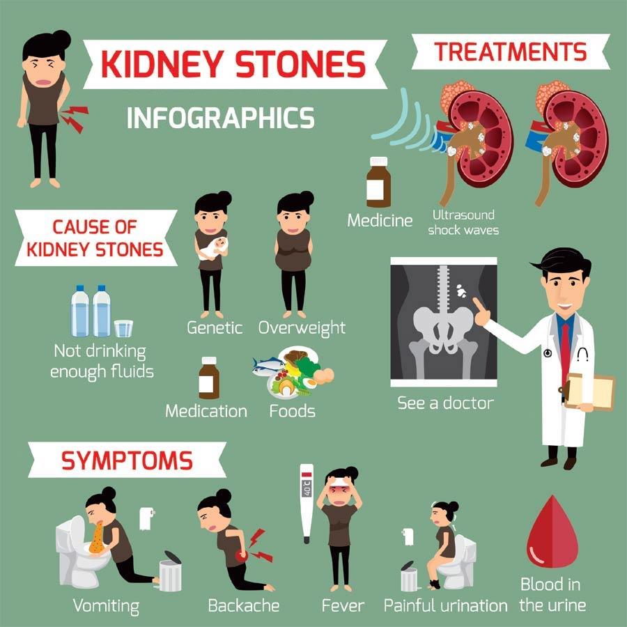 Kidney Stones Info