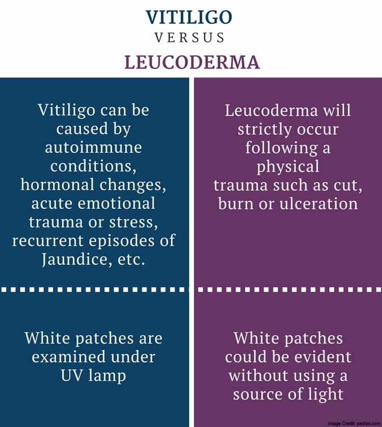 Leucoderma Symtoms