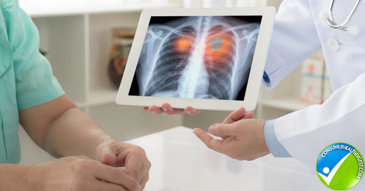 Lung Cancer Tests and Diagnosis