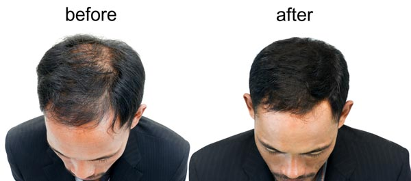 Foligen Before After