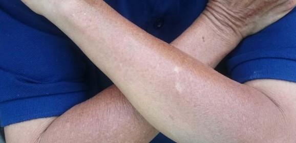 Perplexing Red Skin Disease