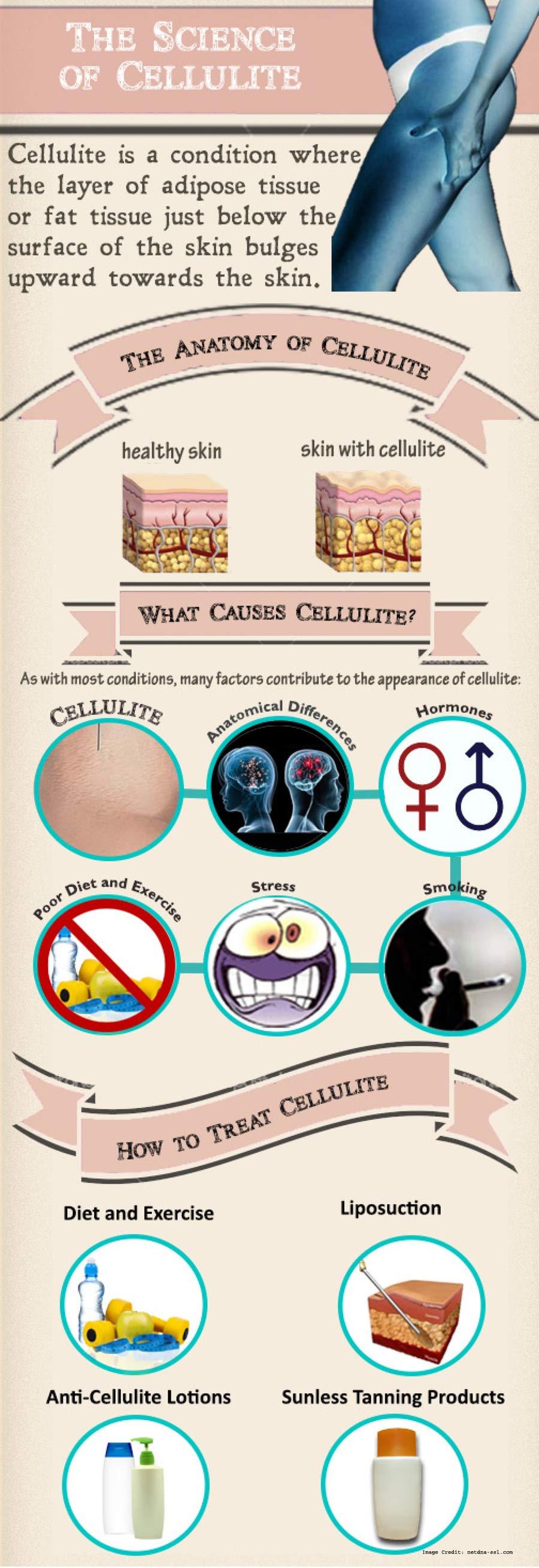 Science Cellulite