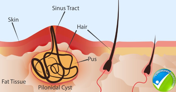Causes and Risk Factors of Pilonidal Cyst