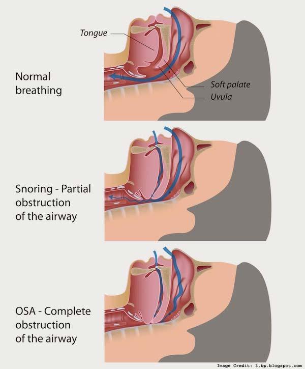 Snoring During Info