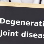 A Guide To Understand Degenerative Joint Disease