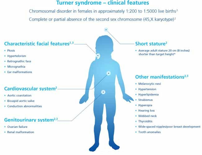 Turner Syndrome Clinical Features