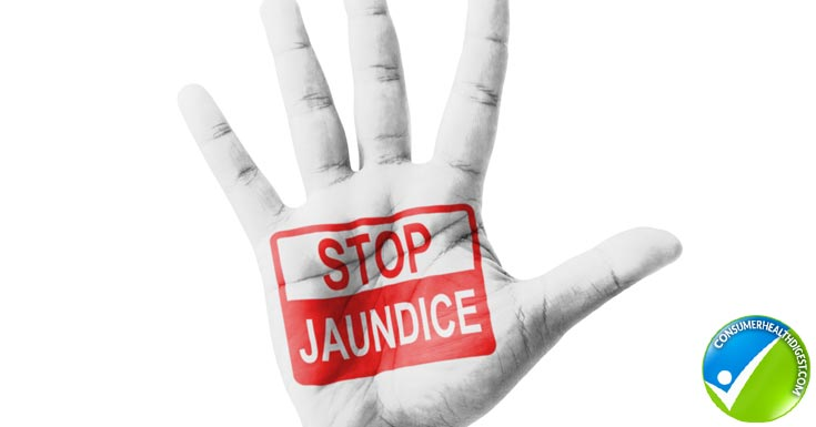 Prevent Jaundice