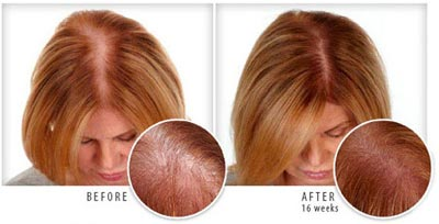 Provillus for Women Before After
