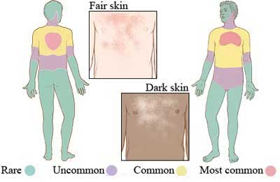 Tinea versicolor Signs and Symptoms