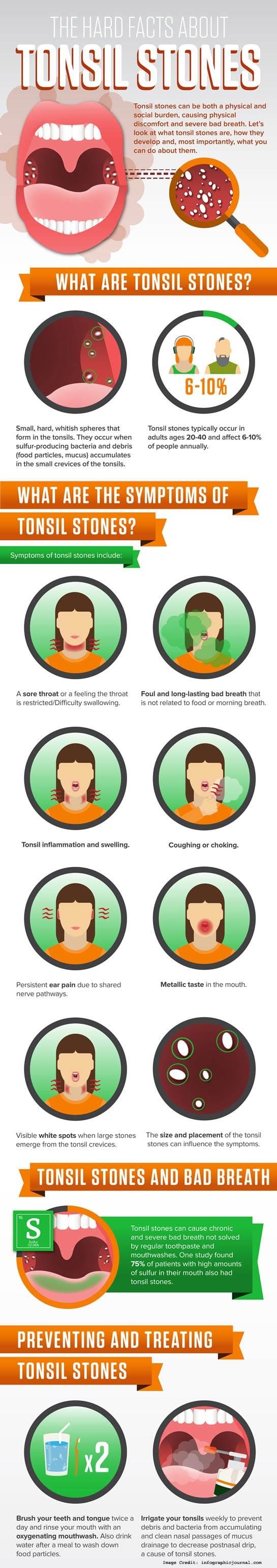 Tonsil Stones Info