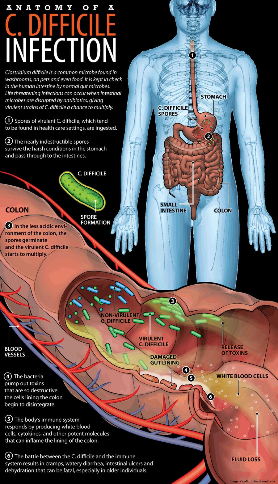 clostridium difficile infection causes and treatment Clostridium difficile–associated disease: diagnosis, prevention, treatment, and  clostridium difficile infection in  treatment of clostridium difficile.