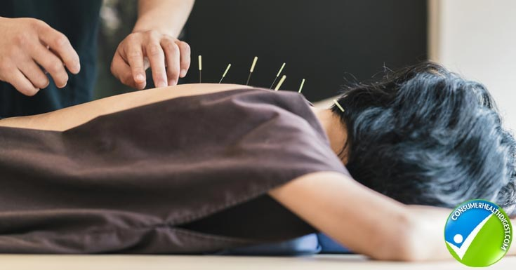 Utilize Acupuncture