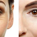 Wrinkle Reduction Now A Popular Trend In Australia