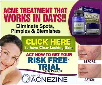 Advantages of Acnezine