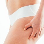 Cellulite Disappear – Anti-Cellulite System by Dr. Helen