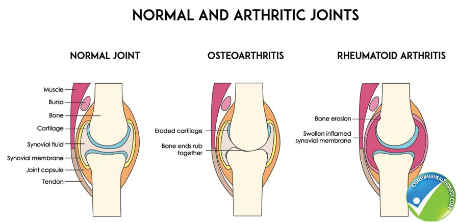 Disease of the joints