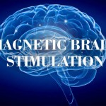 Can Magnetic Brain Stimulation Lose Weight Safely & Effectively?