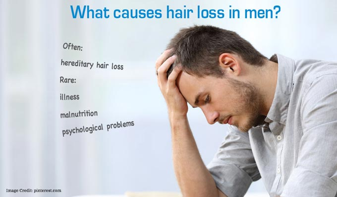 Causes-Male-Pattern-Baldness