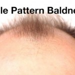 Male Pattern Baldness: Everything You've Ever Wanted To Know