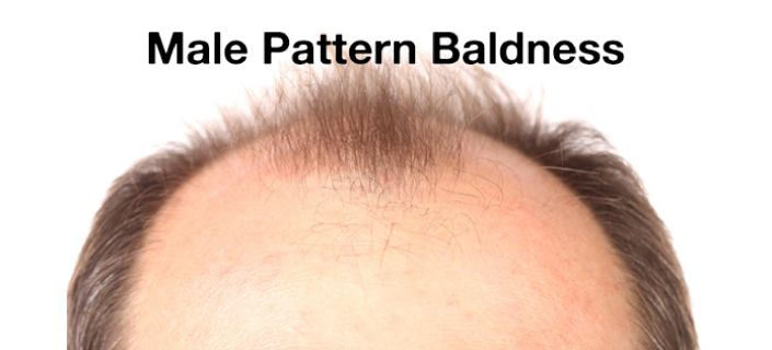 Male Pattern Baldness Everything You've Ever Wanted To Know Awesome Male Pattern Baldness