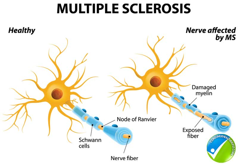 Multiple Sclerosis Detail