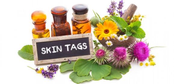 Natural Skin Tag Removal Treatments