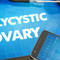 Polycystic Ovaries and Heart Disease