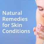 Skin Conditions Natural Remedies: Treat* Common Skin Conditions