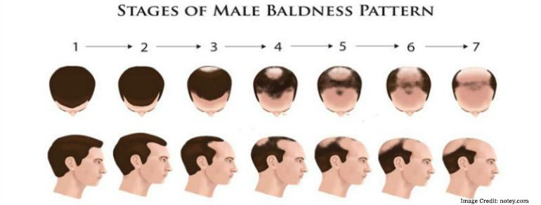 Stages-Of-Male-Pattern-Bladness