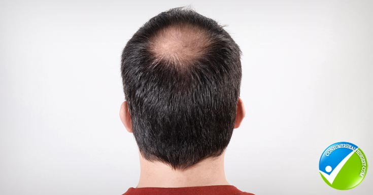 Symptoms-Of-Male-Pattern-Baldness