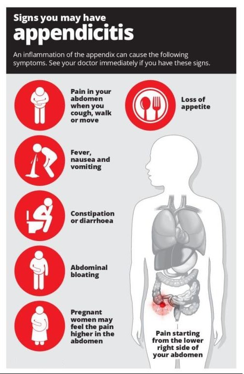 Causes of Appendicitis