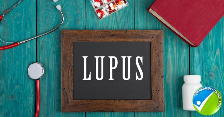 Diagnosed with Lupus