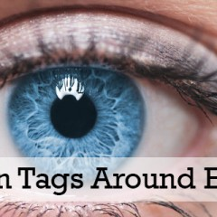 Remove Skin Tags Around Your Eyes