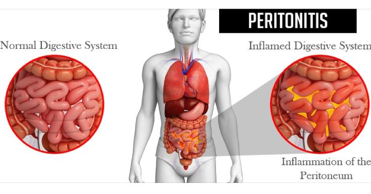 Peritonitis Ruptured Appendix