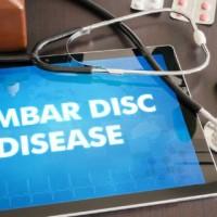 Lumbar Disc Dieease Radiculopathy