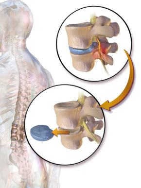 Manage lumbar disc disease