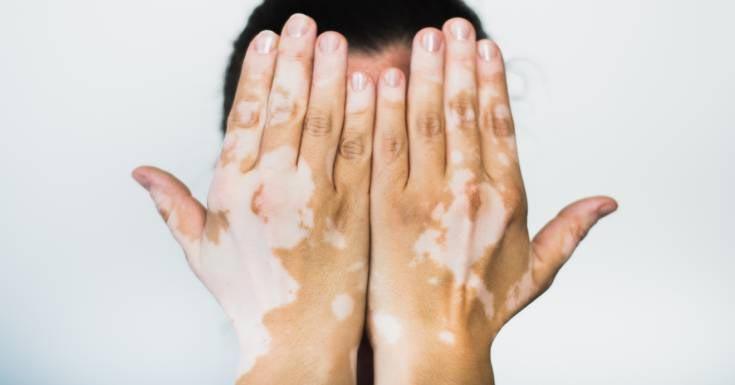 Categorize Vitiligo