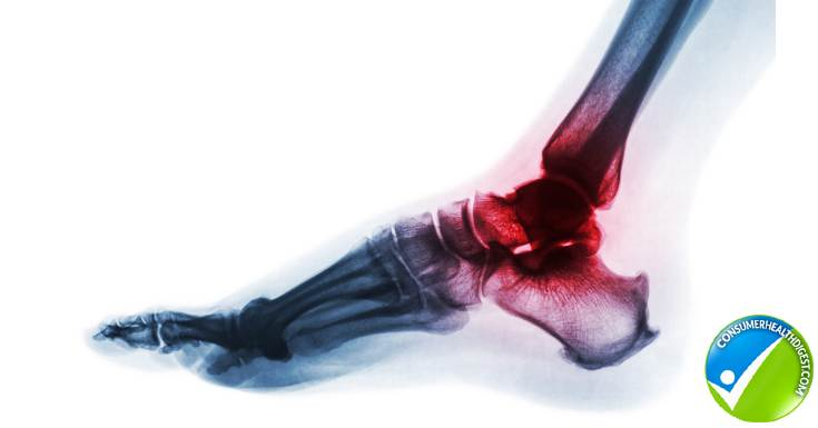 ankle and foot arthritis