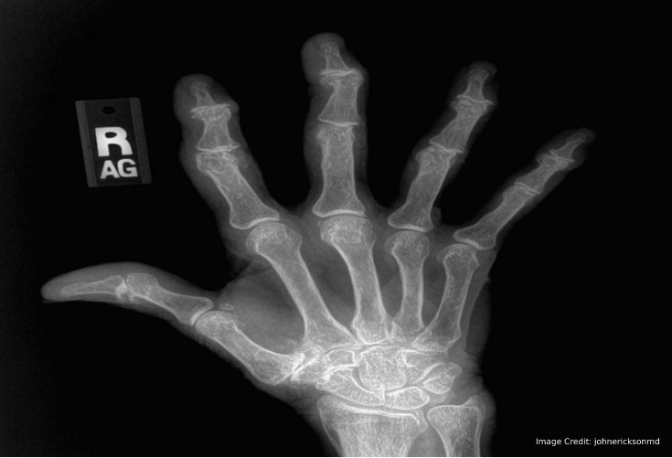 arthritis-from-an-x-ray
