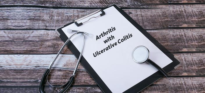 arthritis-with-ulcerative-colitis