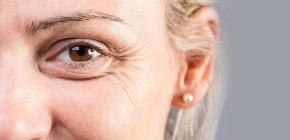 Dry skin under eyes