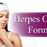 Herpes Cleanse Formula- How It Is Beneficial To You