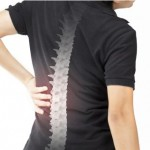 Spinal Arthritis: Know Its Symptoms, Causes and Treatment