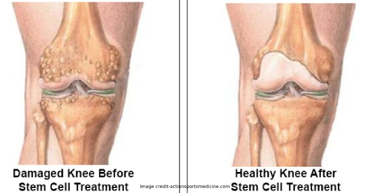 Stem Cell Therapy for Knees Work