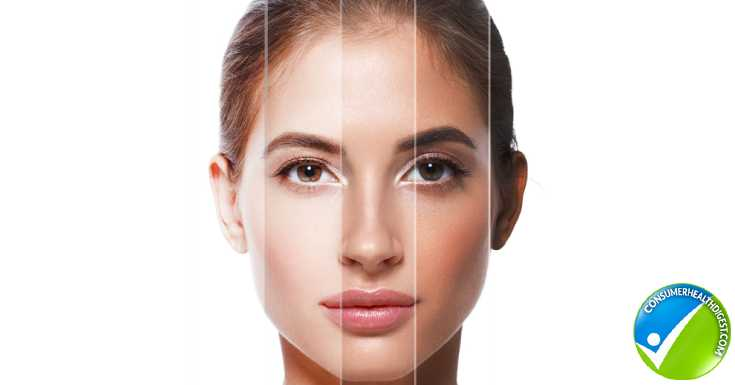 What causes uneven skin tone