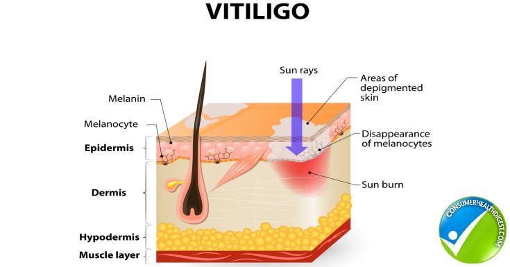 Vitiligo Detail