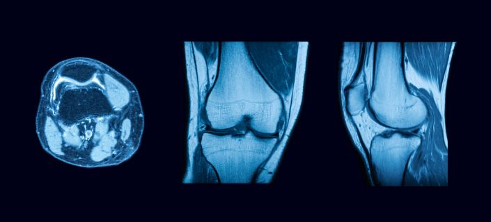 what does arthritis look like on MRI